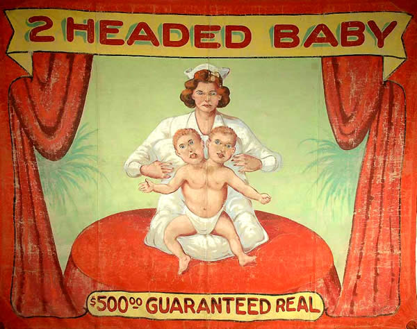 2-headed-baby_cropped